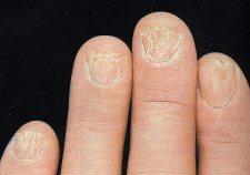 Omeopatia di eczema guarita