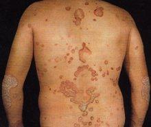 Eczema didra su mani
